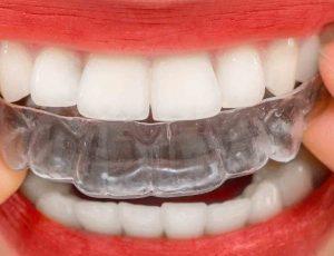 ortodonziaInv